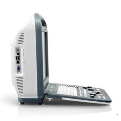 SonoScape S2 Portable Ultrasound machine - thumb